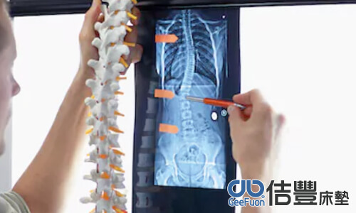 脊椎側彎要選擇什麼床墊呢?(床墊知識推薦)